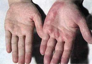 Отклонения в анализах крови при заболеваниях печени